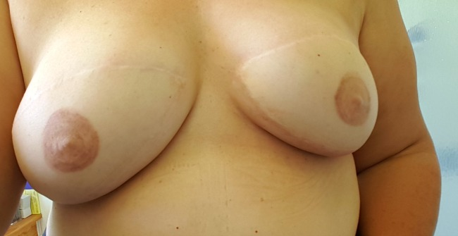 reconstructed-breasts